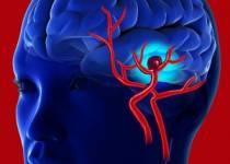 Beyin Anevrizmasının Hayati Belirtileri