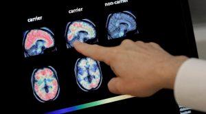 ABD'de Beyin Yiyen Mikrop Çıktı